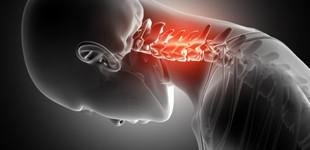 Csontritkulás teszt
